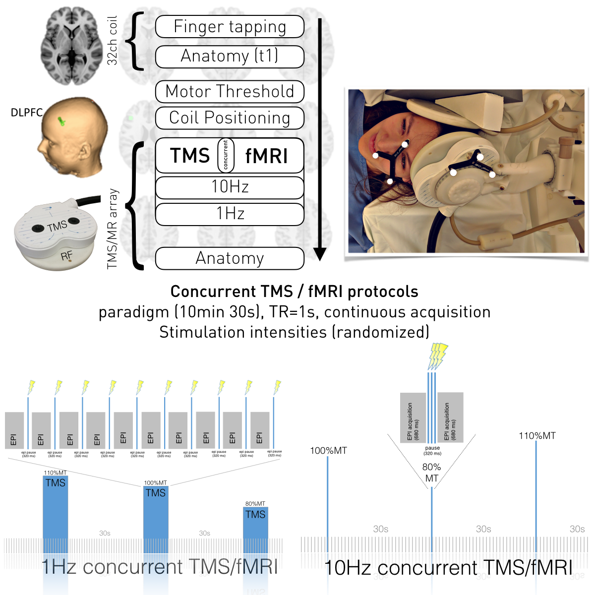 Interleaved TMS/fMRI